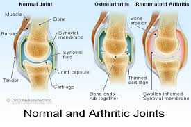 normal and arthritic joints