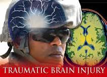 soldiers and TBI
