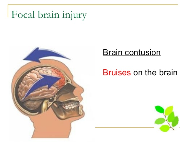 A contusion on the brain