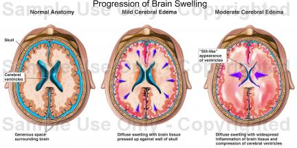 brain swelling pictures