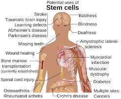 The benefits of stem cell research